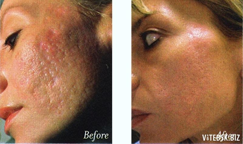после шелушения срединного пилинга кожа какая