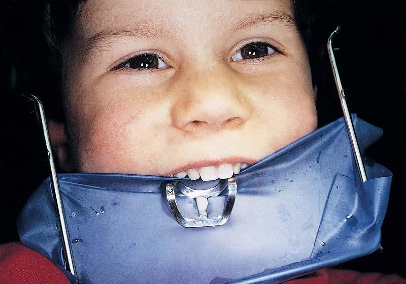 зубной канал фото