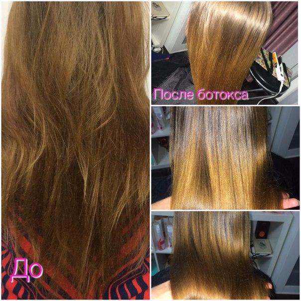 Берокка отзывы при выпадении волос